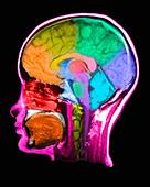 MRI Scan of human head - Stock Image - CTF40K