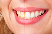 Before and after of a dental whitening procedure - Stock Image - CYM2BC