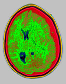 HEMATOMA, BRAIN SCAN - Stock Image - D0A22A