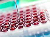 Automated blood screening - Stock Image - C5HK5P